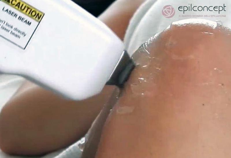 Trattamenti estetici laser diodo 808 epilconcept